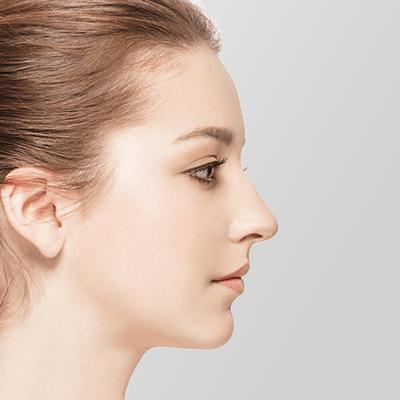 隆鼻術(プロテーゼ挿入)